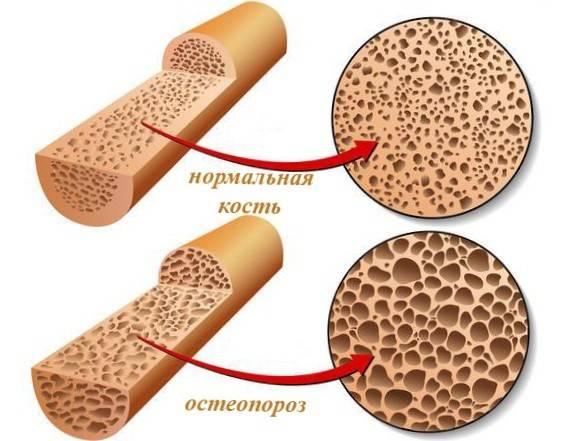osteoporosis копия