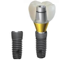 Implantium